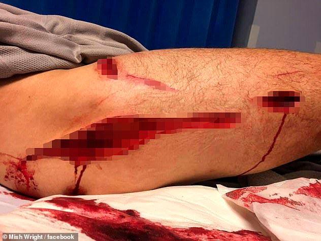 Phil Mummert-la herida del tiburon en el muslo es de mas de 15 cm